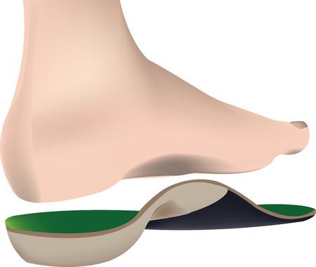 pies masculinos: pie humano desnudo con plantilla