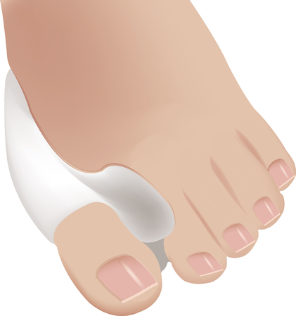 big toe: sun of the foot bunion