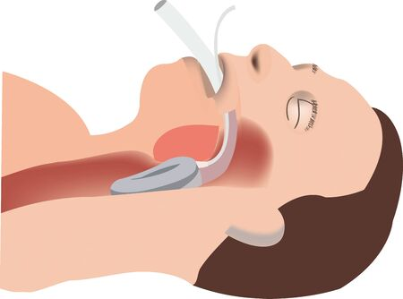 person with artificial re-response tube