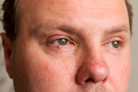 Big pimple on the skin of the lower eyelid on the mans face.