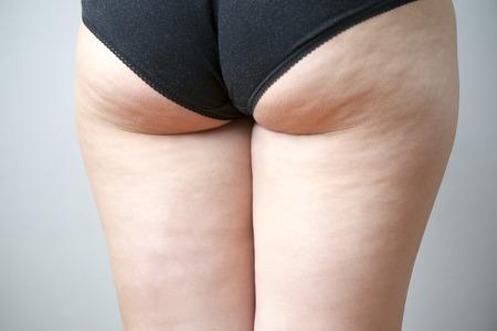 femme en sous vetements: Gras hanches féminines. Soins de la peau, la cellulite. Obésité