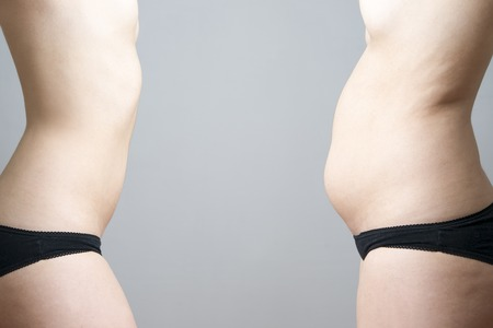 Obesity before after. Young womans body on gray background. photo