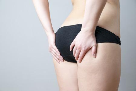 culo donna: Sedere massaggio contro la cellulite. Grassi fianchi femminili. La cura della pelle, cellulite. Obesità