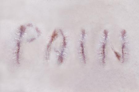 Pain and scars on human skin. Tetragrammaton. Фото со стока