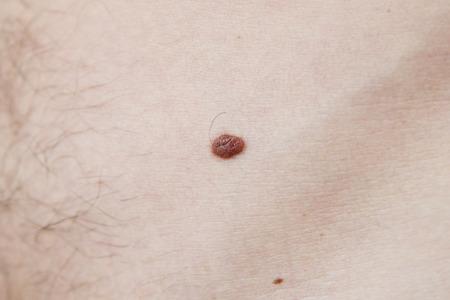 moles: Birthmark on the human body close-up. Melanoma skin
