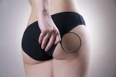 Fatty female buttocks. Skin care cellulite. Obesity