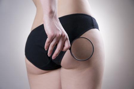 Fatty weibliche Gesäß. Hautpflege Cellulite. Fettleibigkeit Standard-Bild