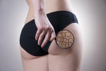 지방 여성의 엉덩이. 스킨 케어, 셀룰 라이트. 비만