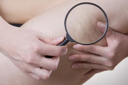 mujer celulitis: Las venas varicosas se cierran para arriba con una lupa Foto de archivo