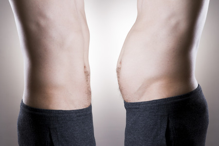 weight loss man: Man before and after weight loss. Fat and slim body on a gray background Stock Photo