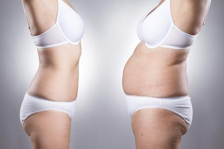 obesidad: El cuerpo de la mujer antes y después de la pérdida de peso sobre un fondo gris Foto de archivo