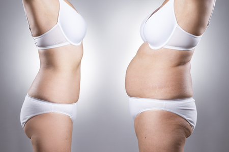 fat belly: Womans body before and after weight loss on a gray background