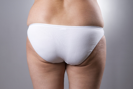 muslos: Culo femenino grasos con celulitis y las estrías sobre un fondo gris
