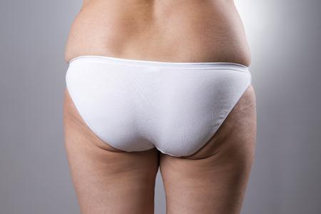hintern: Fatty weiblichen Hintern mit Cellulite und Dehnungsstreifen auf einem grauen Hintergrund