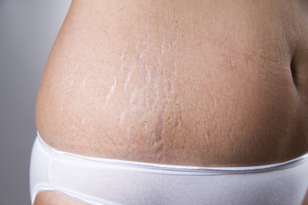 Female belly with stretch marks closeup on a gray background Stock Photo