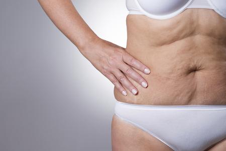 vientre femenino: Estómago flácido de una anciana de cerca sobre un fondo gris Foto de archivo