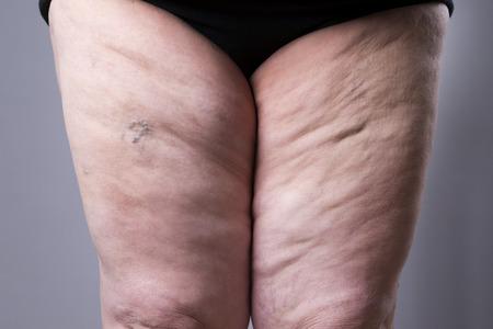 정맥류의 근접 촬영입니다. 회색 배경에 두꺼운 여성의 다리