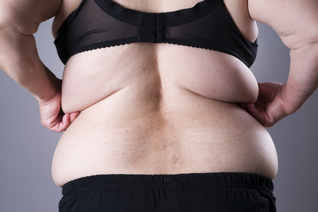 thick growth: Obesity female body, fat woman back in black lingerie on gray background Stock Photo