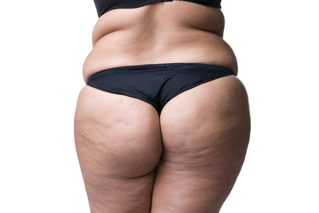 folds: Fat female body with cellulite, fatty hips and buttocks, isolated on white background