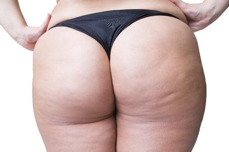 셀 룰 라이트, 지방 엉덩이와 엉덩이, 흰색 배경에 고립 된 지방 여성의 몸