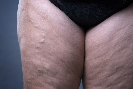 varicose: Varicose veins closeup, thick female legs on a gray background