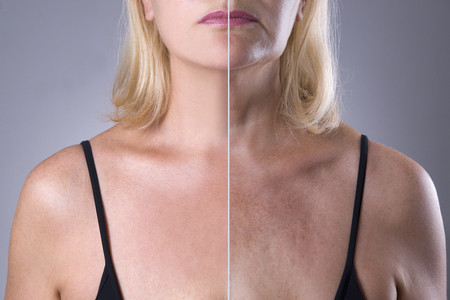 Rejuvenation womans skin, before after anti aging concept, wrinkle treatment, facelift and plastic surgery, half of body on gray background