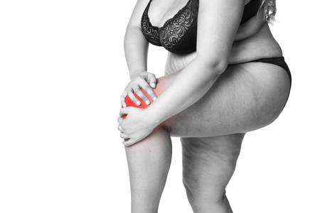 Knee pain, fat woman with joint arthritis, overweight female body isolated on white background, black and white photo with red spots