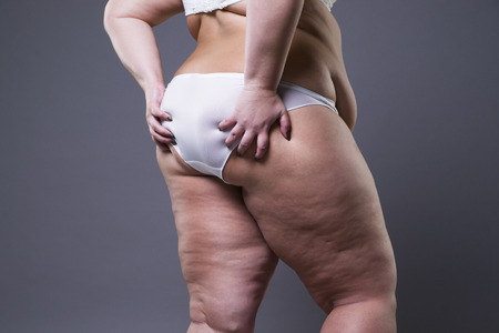 oversized: Overweight woman with fat legs and buttocks, obesity female body on gray background