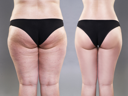 Overweight woman with fat legs and buttocks, before after concept, obesity female body on gray background, rear view Stock Photo