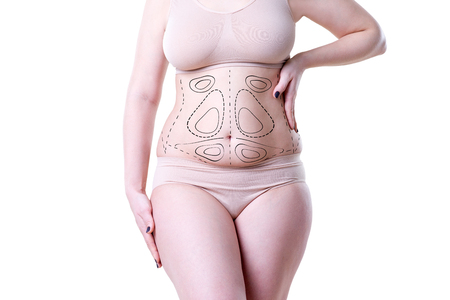 Liposuction, fat and cellulite removal concept, overweight female body with painted lines and arrows, isolated on white background Standard-Bild - 101099104