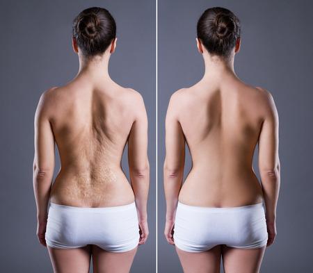Donna con grande cicatrice sulla schiena, prima dopo il concetto, vista posteriore su sfondo grigio Archivio Fotografico