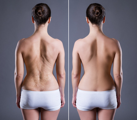 Frau mit großer Narbe auf der Rückseite, vor nach Konzept, Rückansicht auf grauem Hintergrund Standard-Bild