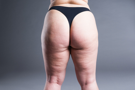 Fat female body with cellulite, overweight back, hips and buttocks on gray background, rear view 스톡 콘텐츠