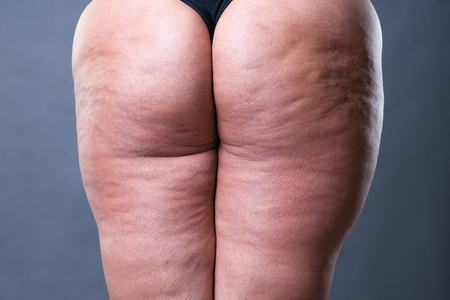 Fat female body with cellulite, overweight back, hips and buttocks on gray background, rear view Imagens