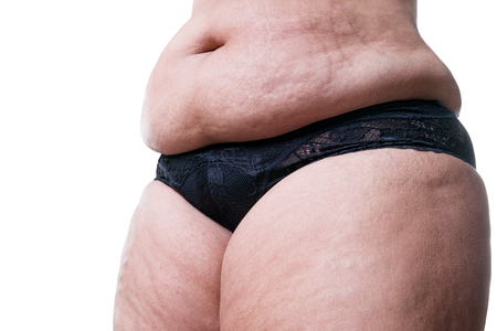 Overweight woman with fat belly, obesity female stomach isolated on white background
