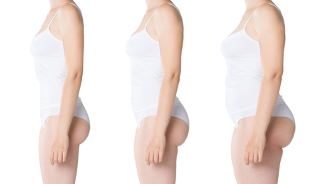 Woman's body before and after weight loss isolated on white background, composite image of three photos