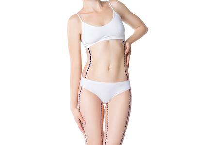Fettabsaugungs-, Fett- und Celluliteabbaukonzept, überladener weiblicher Körper mit gemalten Linien und Pfeile, lokalisiert auf weißem Hintergrund