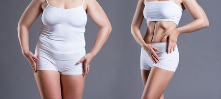 Woman's body before and after weight loss on gray background, plastic surgery concept 免版税图像