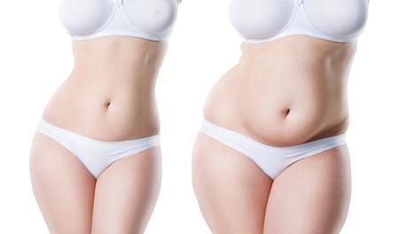 Il corpo della donna prima e dopo la perdita di peso isolato su sfondo bianco, concetto di chirurgia plastica