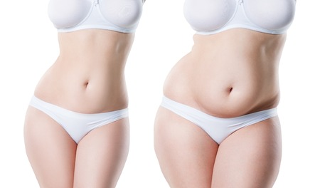 Womans body before and after weight loss isolated on white background, plastic surgery concept