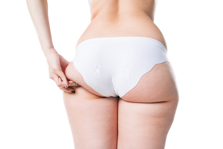 Overweight woman with fat legs and buttocks, obesity female body isolated on white background, studio shot
