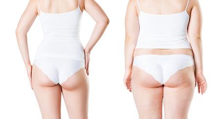 Corps de la femme avant et après la perte de poids isolé sur fond blanc, concept de chirurgie plastique Banque d'images
