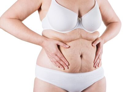 Tummy tuck, flabby skin on a fat belly, plastic surgery concept isolated on white background Фото со стока
