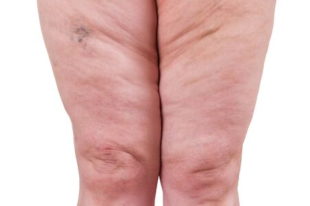Varicose veins closeup, fat female legs isolated on white background