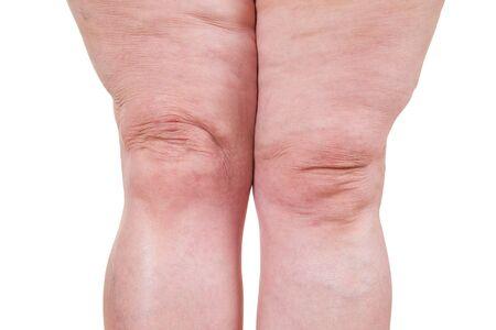 Krampfadern Nahaufnahme, dicke weibliche Beine isoliert auf weißem Hintergrund, Studioaufnahme