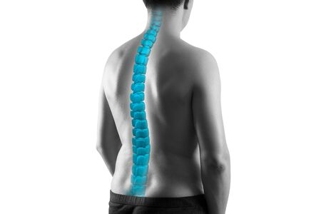 The human spine, sciatica and scoliosis isolated on white background, chiropractor treatment concept, photo with highlighted skeleton