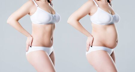 Woman's body before and after weight loss on gray background, plastic surgery concept Reklamní fotografie - 132118225