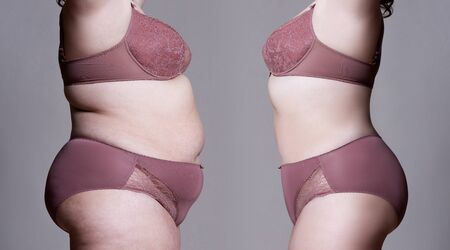 Fat woman's body before and after weight loss on gray background