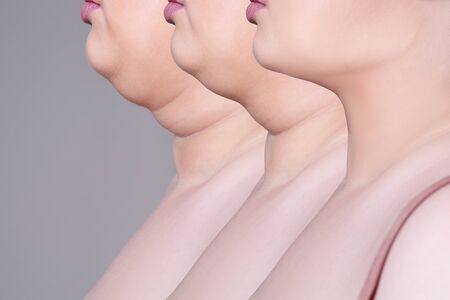 Double chin, skin rejuvenation on the neck, before after anti aging concept, collage of three photos on gray background