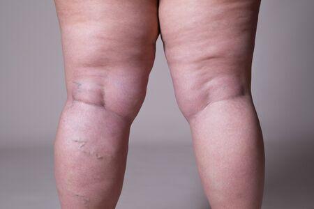 Krampfadern Nahaufnahme, fette weibliche Cellulite Beine auf grauem Hintergrund Standard-Bild